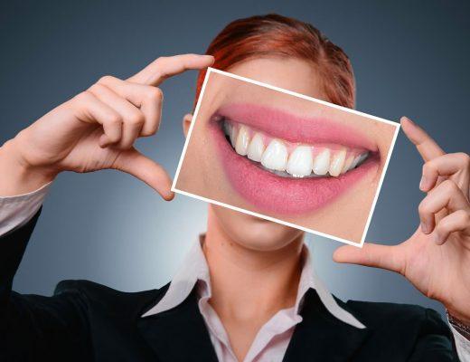 Ce este implantul dentar?